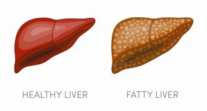 these-reasons-increase-the-risk-of-fatty-liver-keep-these-things-in-mind
