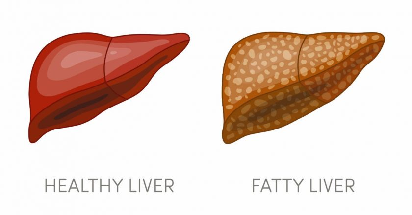 These Reasons Increase the Risk of Fatty Liver: Keep these things in Mind